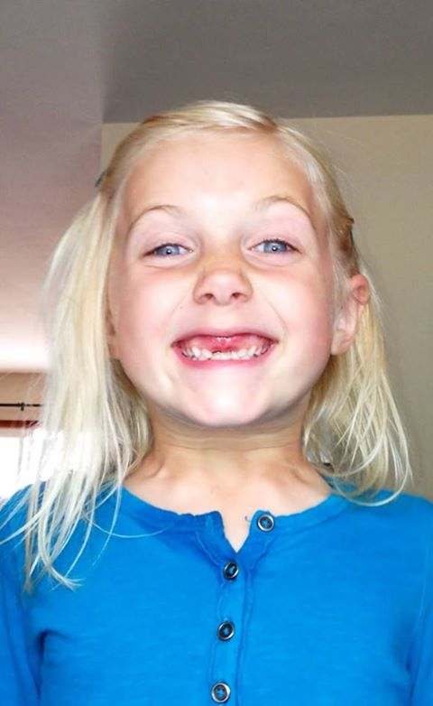 Katelin's two front teeth